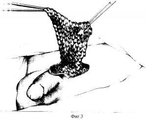 мышечный лоскут