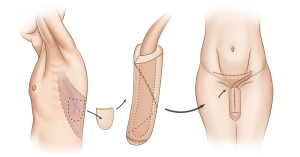 торадоксальная фаллопластика