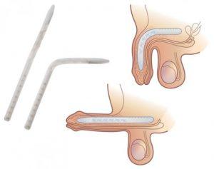 имплант в член полужесткий